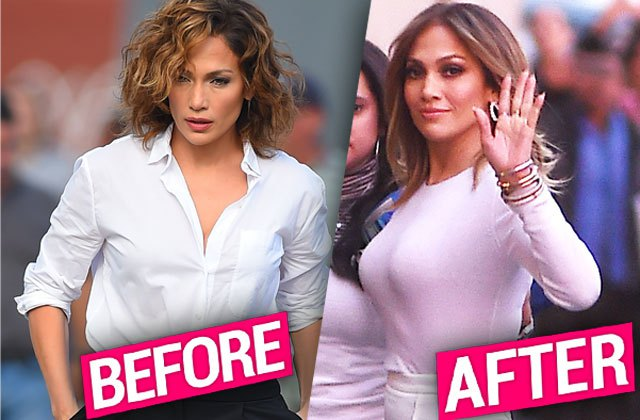 jennifer lopez plastic surgery boob job 2 pp 590c2